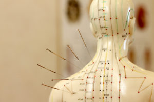 mannequin with acupuncture needles